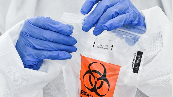 17 July 2020, US, Rock Island: A health worker places a sample into a biohazard bag at a coronavirus testing mobile facility in the parking lot of the QCCA Expo Center. Photo: Meg Mclaughlin/Dispatch Argus via ZUMA Wire/dpa ONLY FOR USE IN SPAIN  17 July 2020, US, Rock Island: A health worker places a sample into a biohazard bag at a coronavirus testing mobile facility in the parking lot of the QCCA Expo Center. Photo: Meg Mclaughlin/Dispatch Argus via ZUMA Wire/dpa  17/7/2020 ONLY FOR USE IN SPAIN